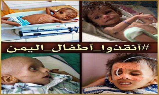 """بخش زنان: کمپاین """"اطفال یمن؛ قربانیان جنگ فراموش شده!"""""""